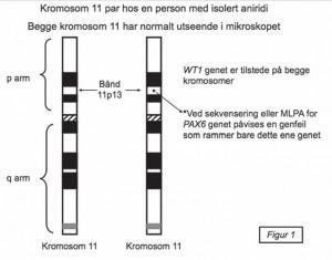 Kromosom 11 par hos en person med isolert aniridi