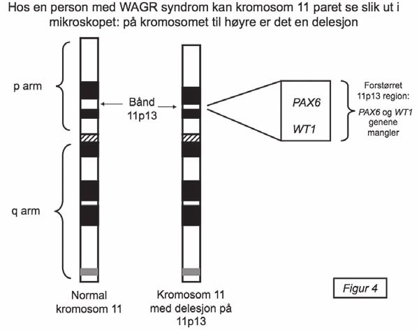 Kromosom 11 paret hos en person med WAGR